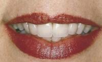 konzervacni-stomatologie-usmev